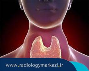 عود تومورهای تيروئيد بعد از تیروئیدکتومی توتال
