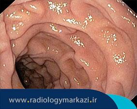 رادیولوژی ترانزیت روده باریک