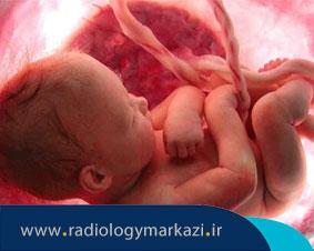 آنچه باید درباره ی غربالگری سلامت جنين بدانید