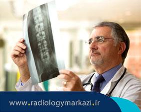 رادیولوژی ستون مهره ها چگونه انجام میشود؟