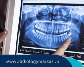موارد قابل تشخیص توسط OPG دندان