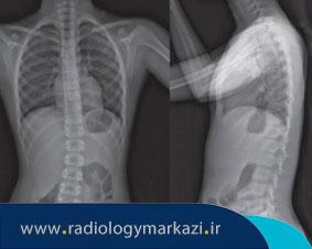 تشخیص انحراف ستون فقرات با رادیوگرافی