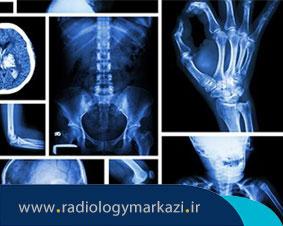 آیا رادیولوژی و رادیوگرافی با هم متفاوت هستند؟