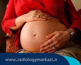 آیا انتقال کرونا از مادر به جنین ممکن است؟
