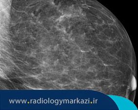 طبقهبندی نتایج ماموگرافی چگونه است؟