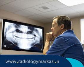 کاربرد رادیوگرافی پانورکس در دندان پزشکی