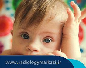 آیا میتوان در دوران جنینی سندروم داون را تشخیص داد؟