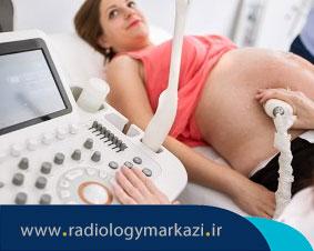 تست بیوفیزیکال پروفایل BPP  چیست و آیا برای مادر و جنین خطر دارد؟