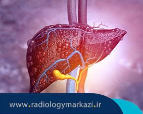 تشخیص بیماریهای مزمن کبد با تکنیک جدید سونوگرافی