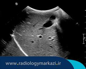 آندوسکوپی سونوگرافی دستگاه گوارش چیست و چگونه انجام میشود؟