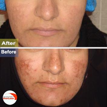 درمان لك صورت با ليزر كيوسويچ پس از دو جلسه