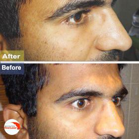 تزریق چربی زیر چشم