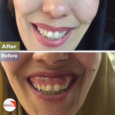 قبل و بعد لبخند با تزریق دیسپورت