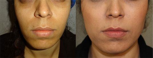 فرم دهی و زیبا سازی صورت با تزریق چربی