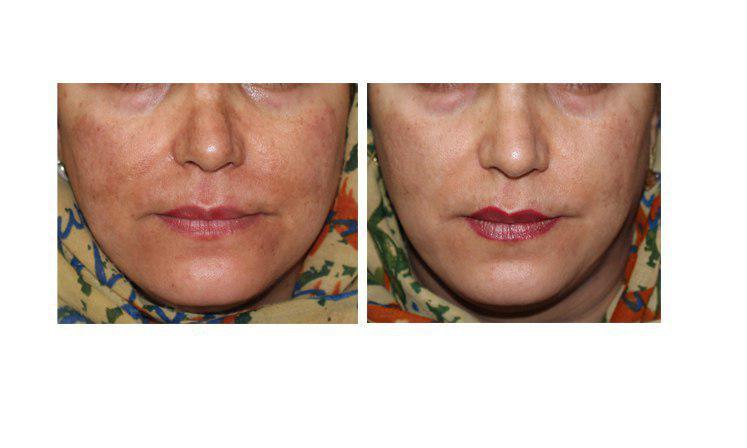 درمان لک های صورت پس از یک جلسه مزو تراپی