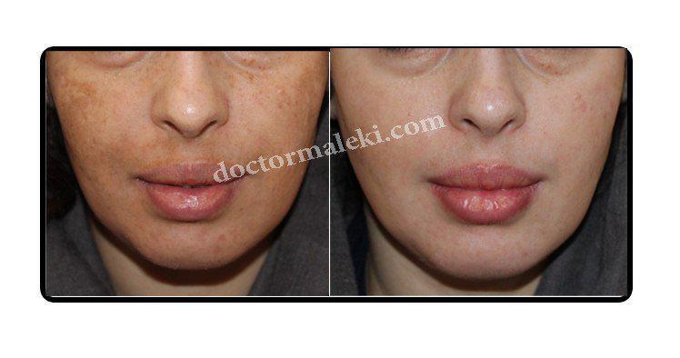 درمان لک های صورت