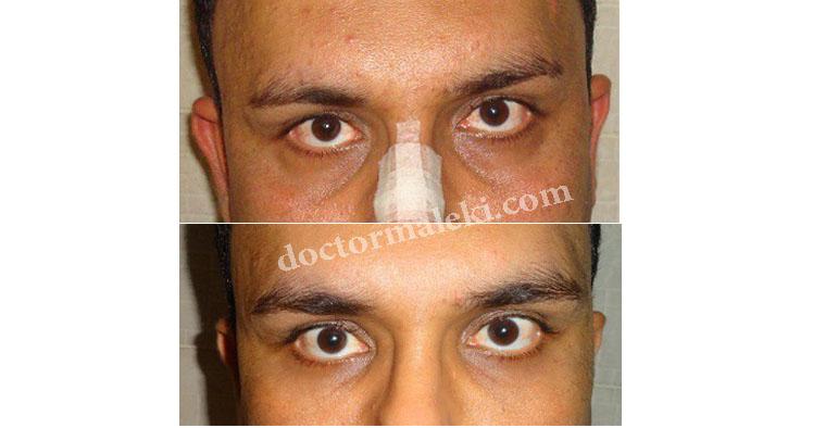تزریق چربی در گودی زیر چشم ا