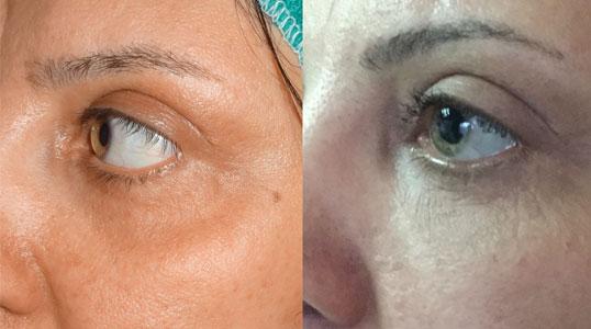 دو سال بعد از تزریق چربی در زیر چشم ها