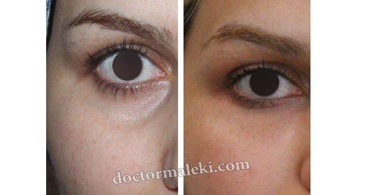 تزریق چربی در گودی زیر چشم