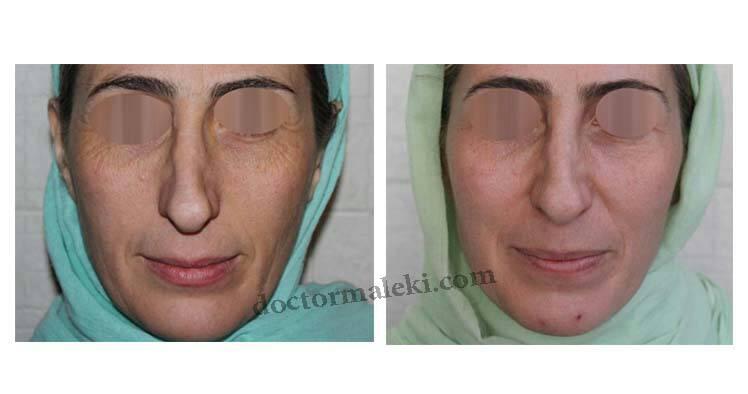 بعد از یک جلسه تیکسل صورت و تزریق بوتاکس