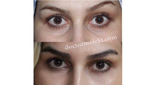 نه ماه بعد از تزریق چربی زیر چشم