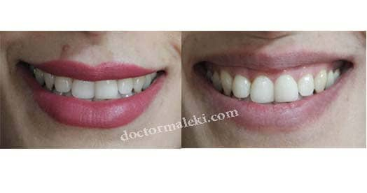اصلاح لبخند لثه ای با تزریق بوتاکس