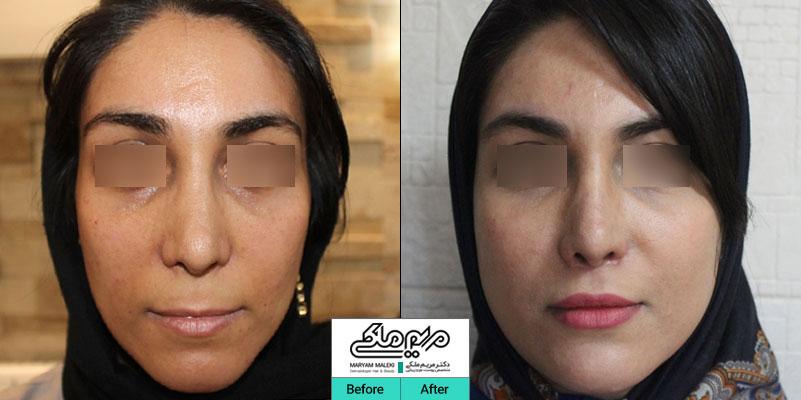 یک سال بعد از تزریق چربی صورت