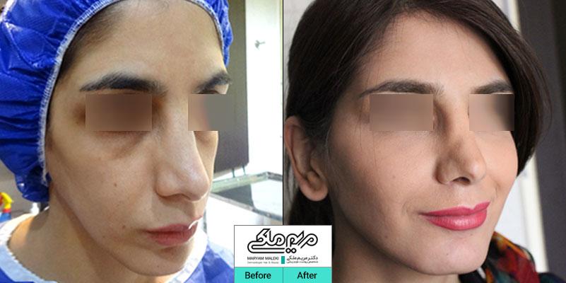 سه سال بعد از تزریق چربی صورت
