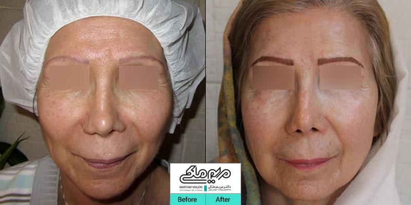 پنح سال بعد از تزریق چربی صورت