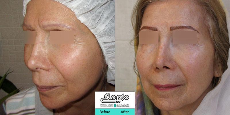 پنج سال بعد از تزریق چربی صورت