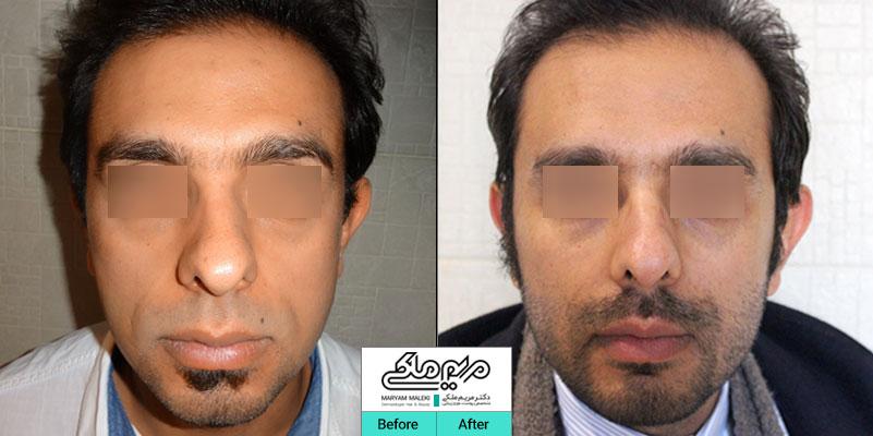 چهارسال بعد از تزریق چربی صورت