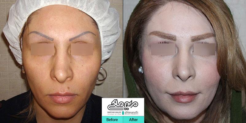 شش سال بعد از تزریق چربی صورت