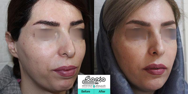 اصلاح فرم صورت با تزریق ژل