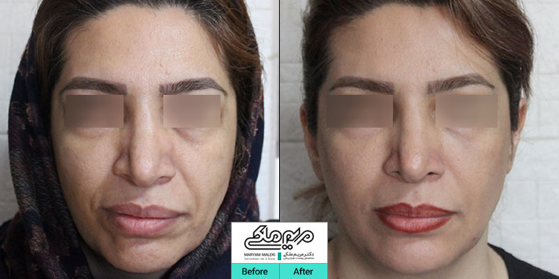 اصلاح فرم صورت و جوانسازی با تزریق ژل