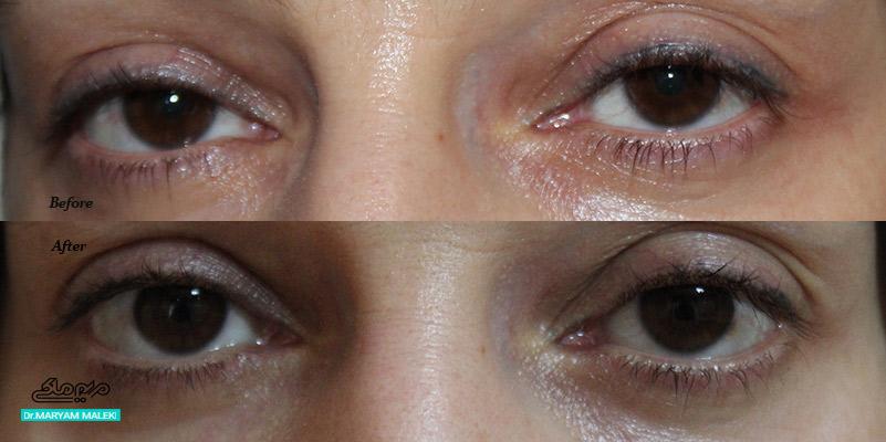 لیزر تاتوی خط چشم