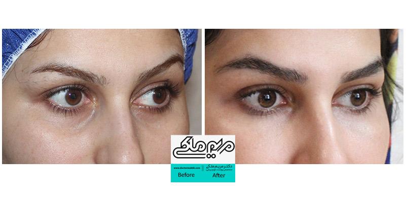 تزریق چربی زیر چشم ب