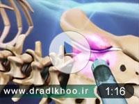 تزریق داخل مفصل ساکروایلیاک