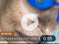 کک مک و درمان توسط لیزر
