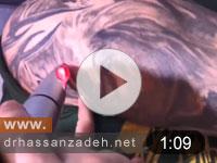 درمان تاتوهای حرفه ای با لیزر کیوسوئیچ