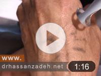 درمان خالکوبی سنتی توسط لیزر کیوسوئیچ در یک جلسه