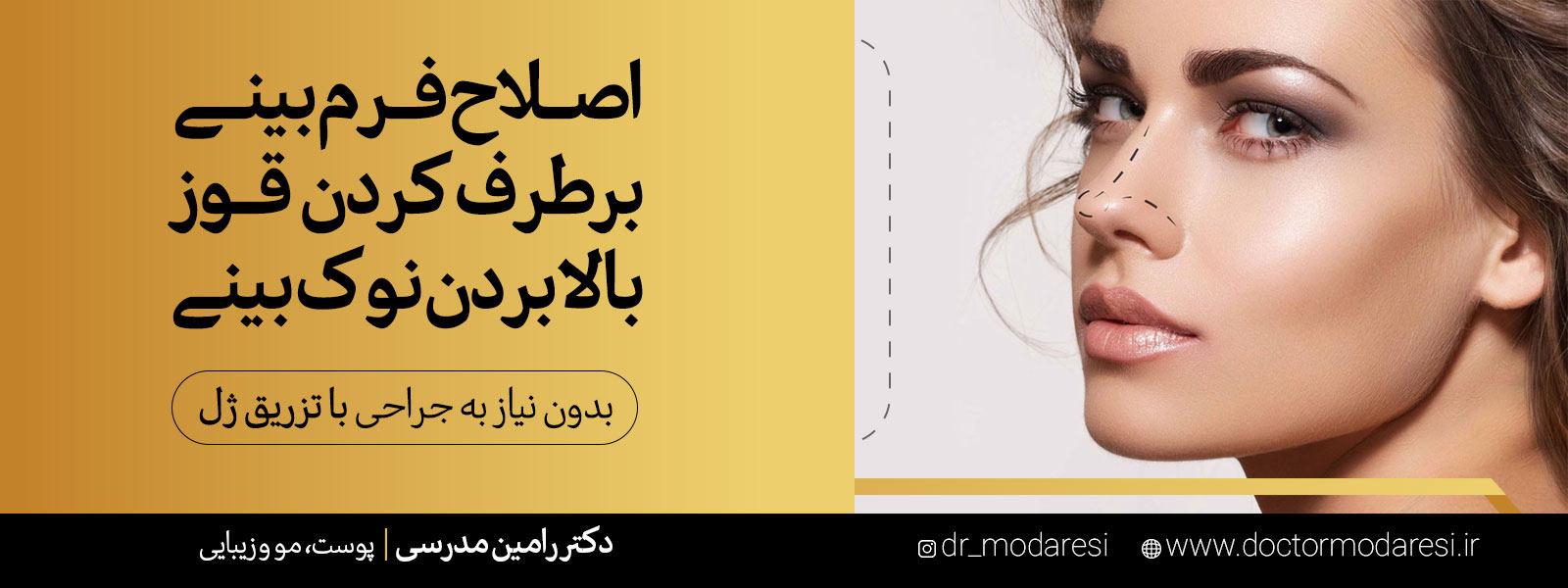 اصلاح فرم بینی