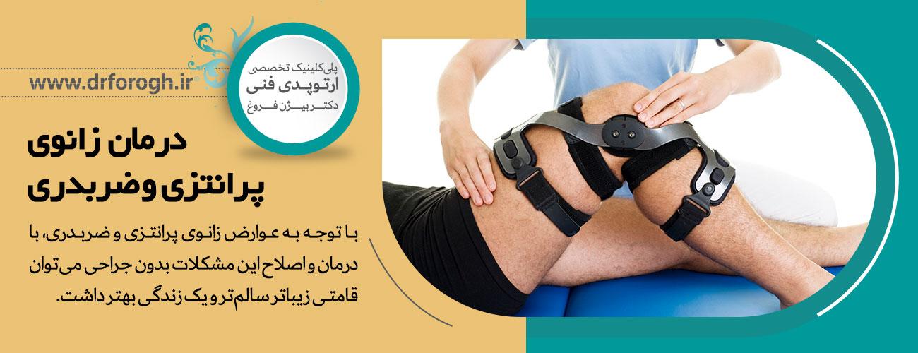 درمان زانوی پرانتزی