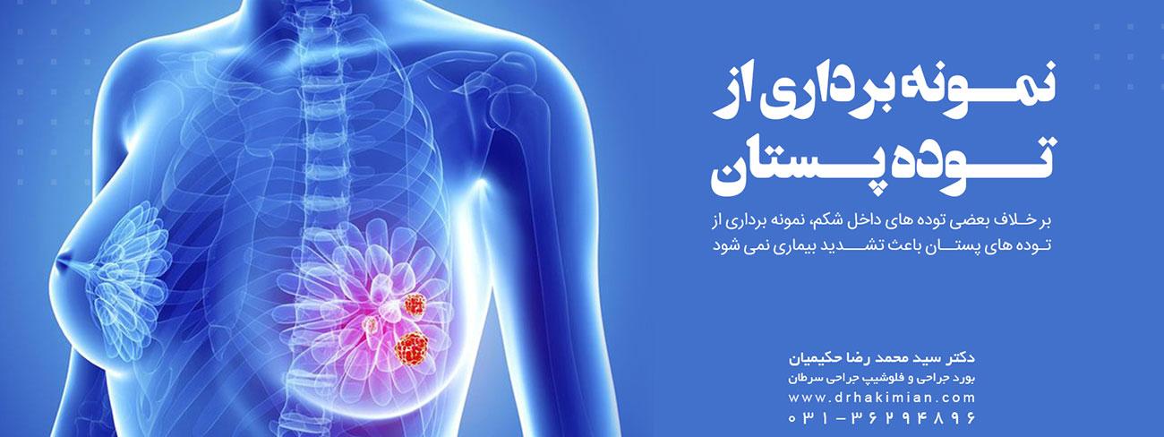 نمونه برداری از توده پستان