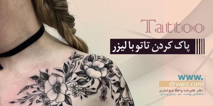 درمان تاتو
