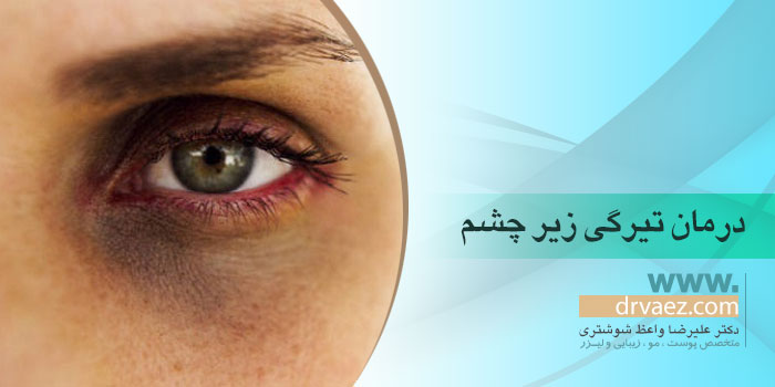 درمان سیاهی زیر چشم