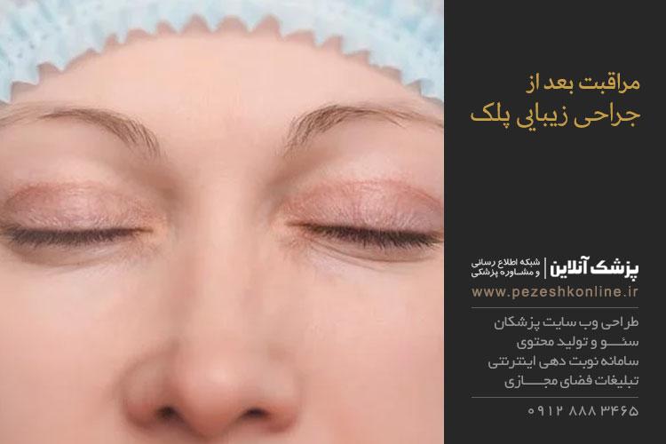 مراقبت بعد از عمل جراحی زیبایی پلک