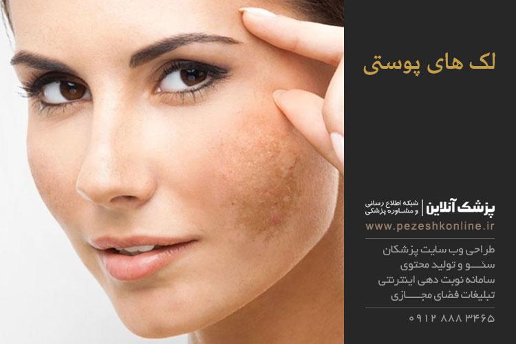 علت لک های پوستی