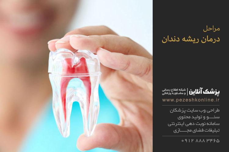 معالجه ریشه دندان