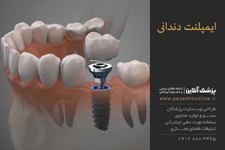 روش های ایمپلنت دندانی