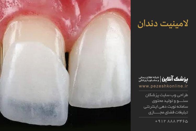 انواع لامینیت دندان